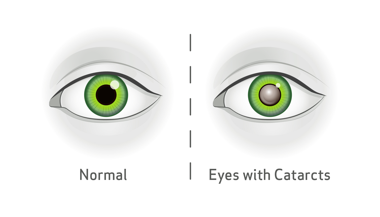 Blink Vision Cataract iagram, left showing normal eye, right showing eye with cataracts