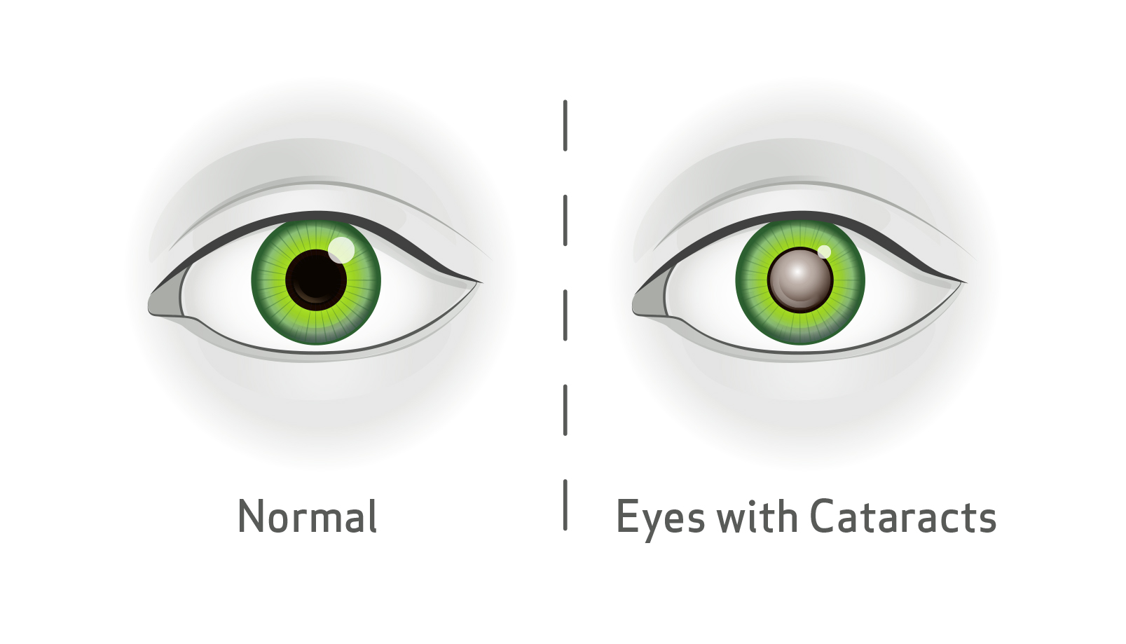Blink Vision Cataract diagram, left showing normal eye, right showing eye with cataracts